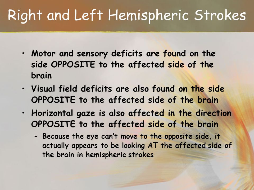 Right and Left Hemispheric Strokes
