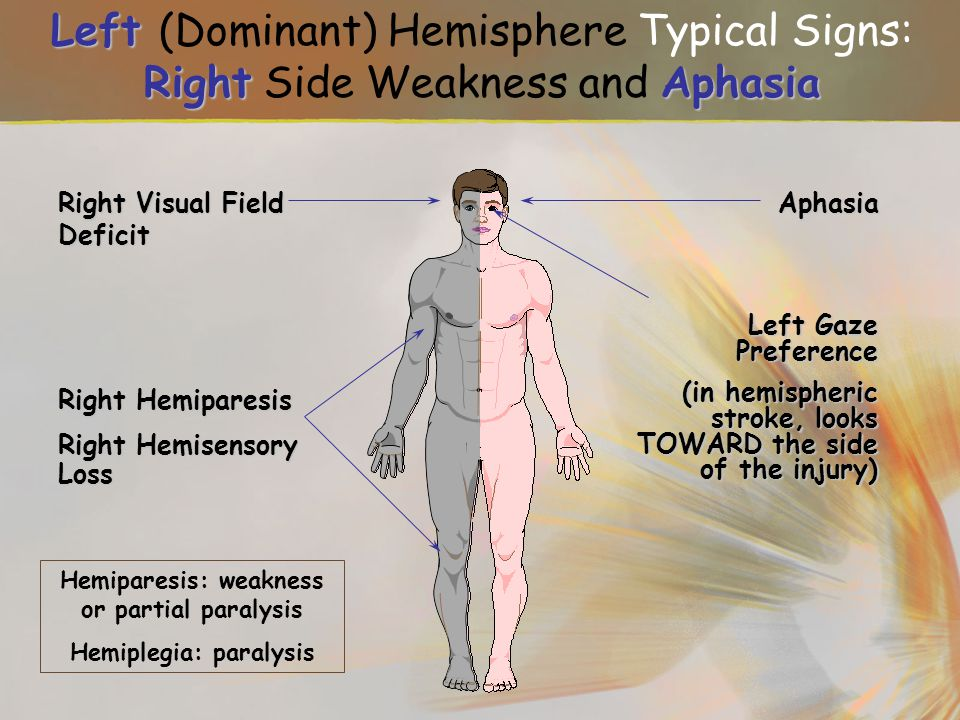 Hemiparesis: weakness or partial paralysis Hemiplegia: paralysis