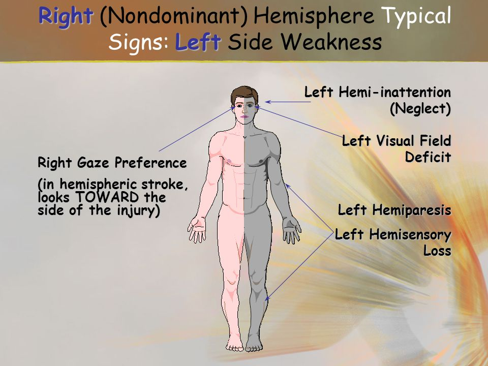 Right (Nondominant) Hemisphere Typical Signs: Left Side Weakness