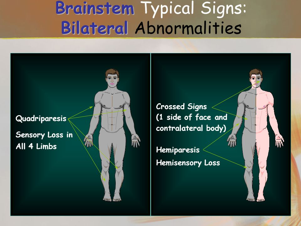 Brainstem Typical Signs: Bilateral Abnormalities