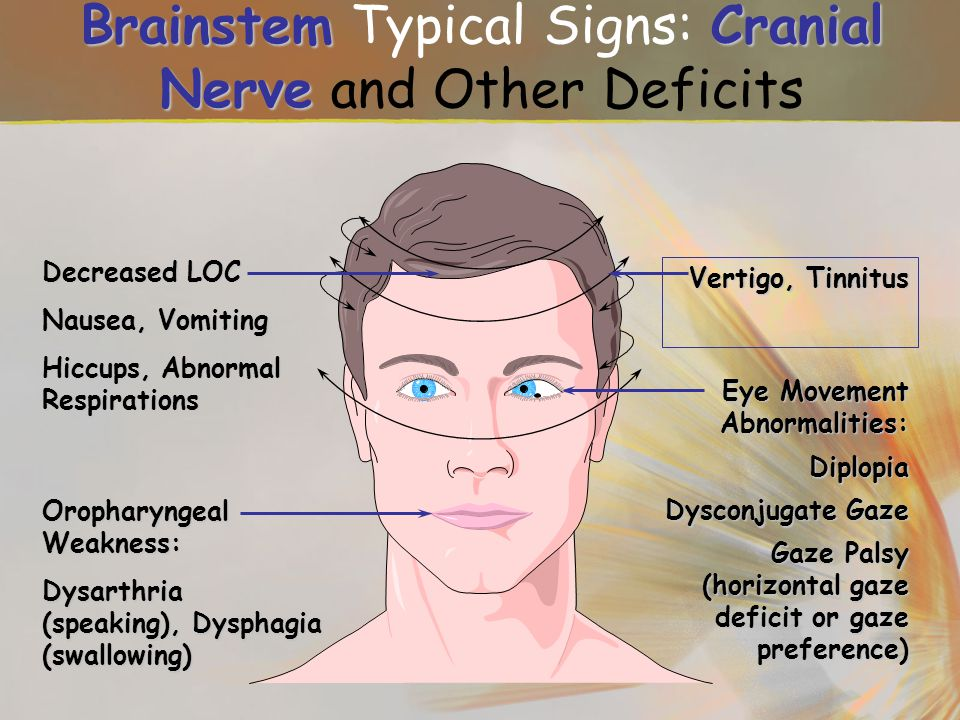 Brainstem Typical Signs: Cranial Nerve and Other Deficits