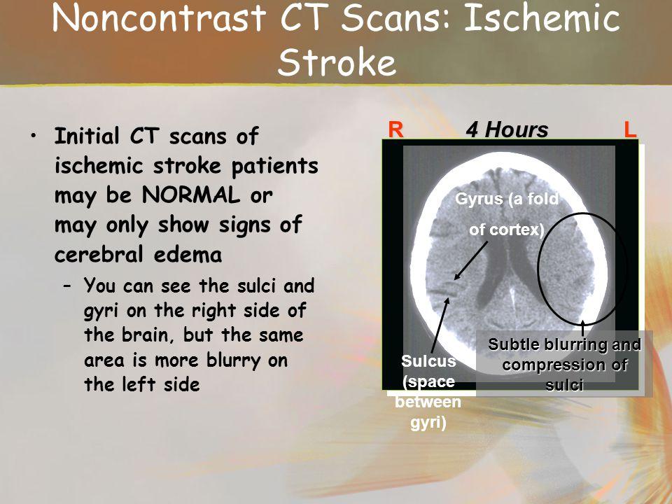 Noncontrast CT Scans: Ischemic Stroke