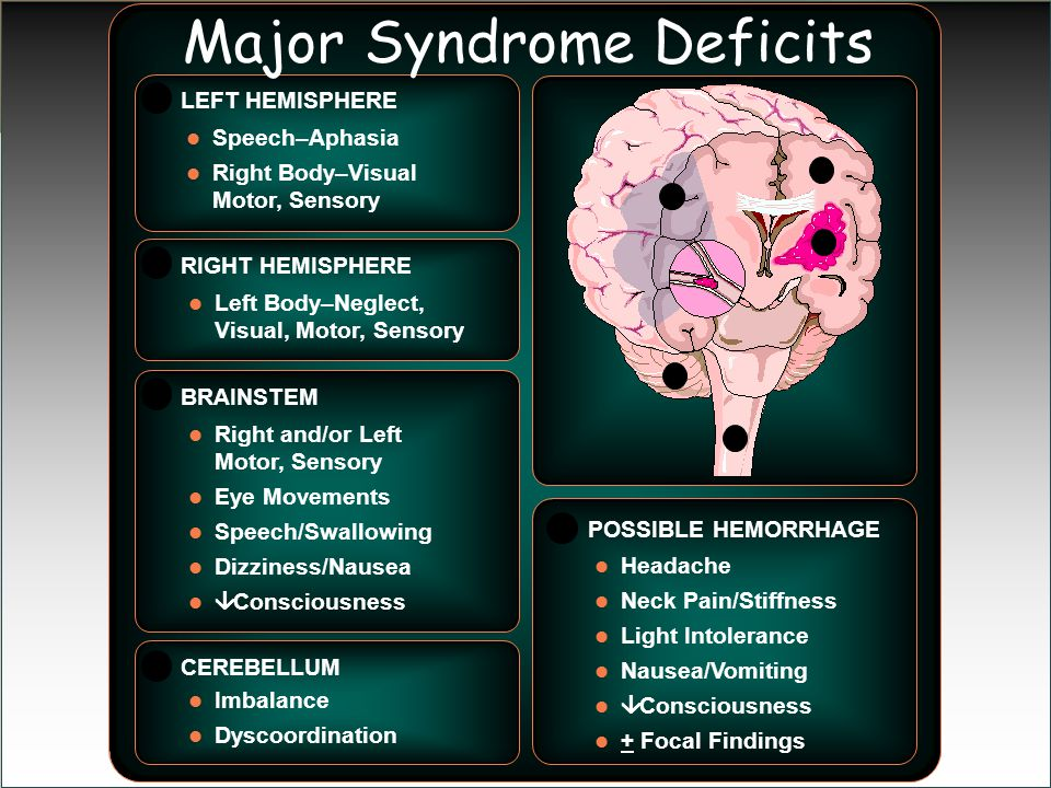 Major Syndrome Deficits