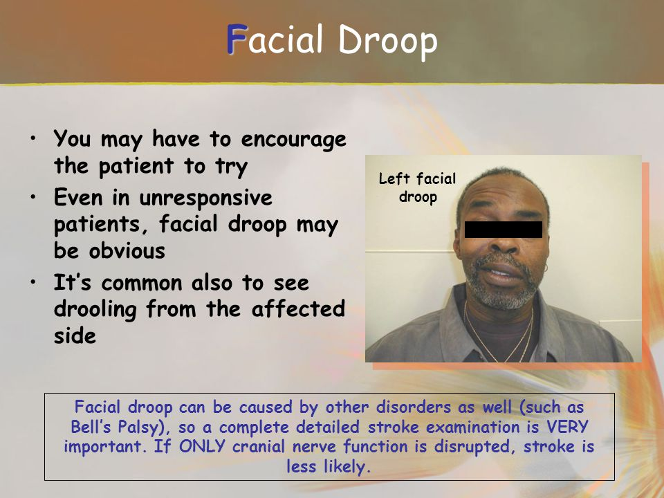 Facial Droop You may have to encourage the patient to try