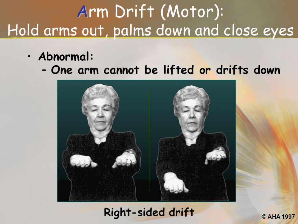 Arm Drift (Motor): Hold arms out, palms down and close eyes