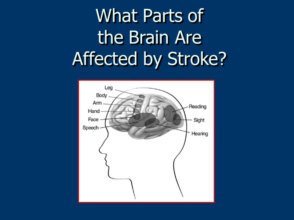 What Parts of the Brain Are Affected by Stroke