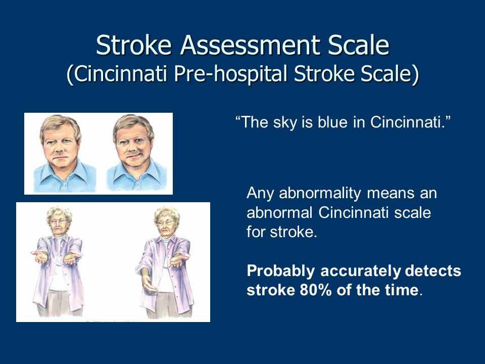 Stroke Assessment Scale (Cincinnati Pre-hospital Stroke Scale)