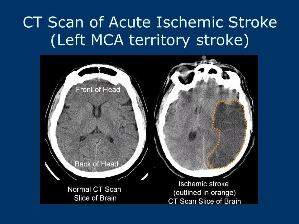 CT Scan of Acute Ischemic Stroke (Left MCA territory stroke)