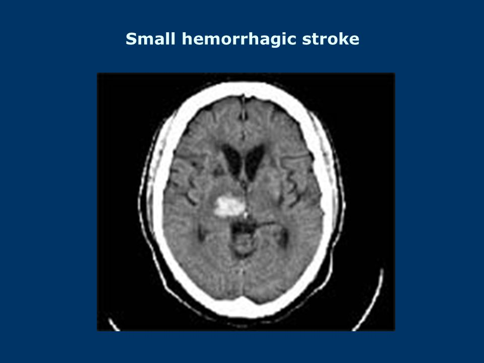 Small hemorrhagic stroke