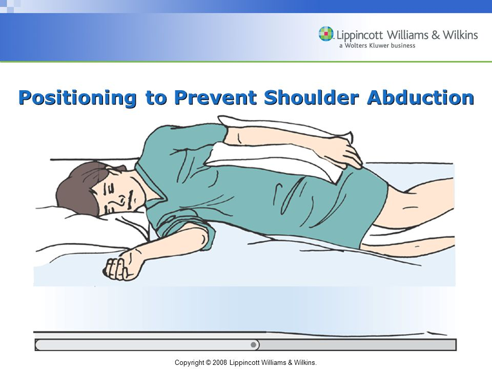 Positioning to Prevent Shoulder Abduction