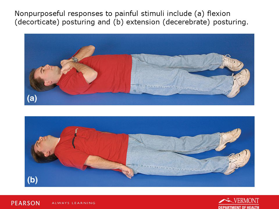 Nonpurposeful responses to painful stimuli include (a) flexion (decorticate) posturing and (b) extension (decerebrate) posturing.