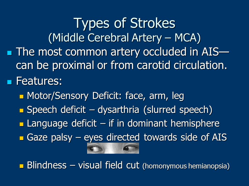 Types of Strokes (Middle Cerebral Artery – MCA)