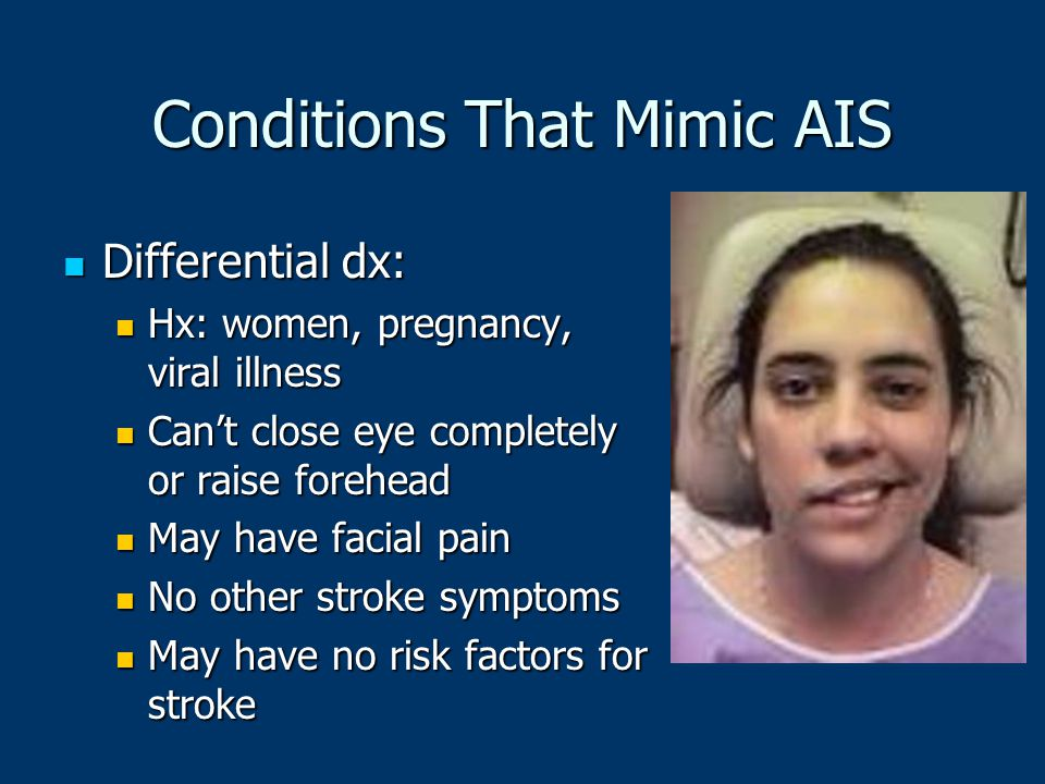 Conditions That Mimic AIS