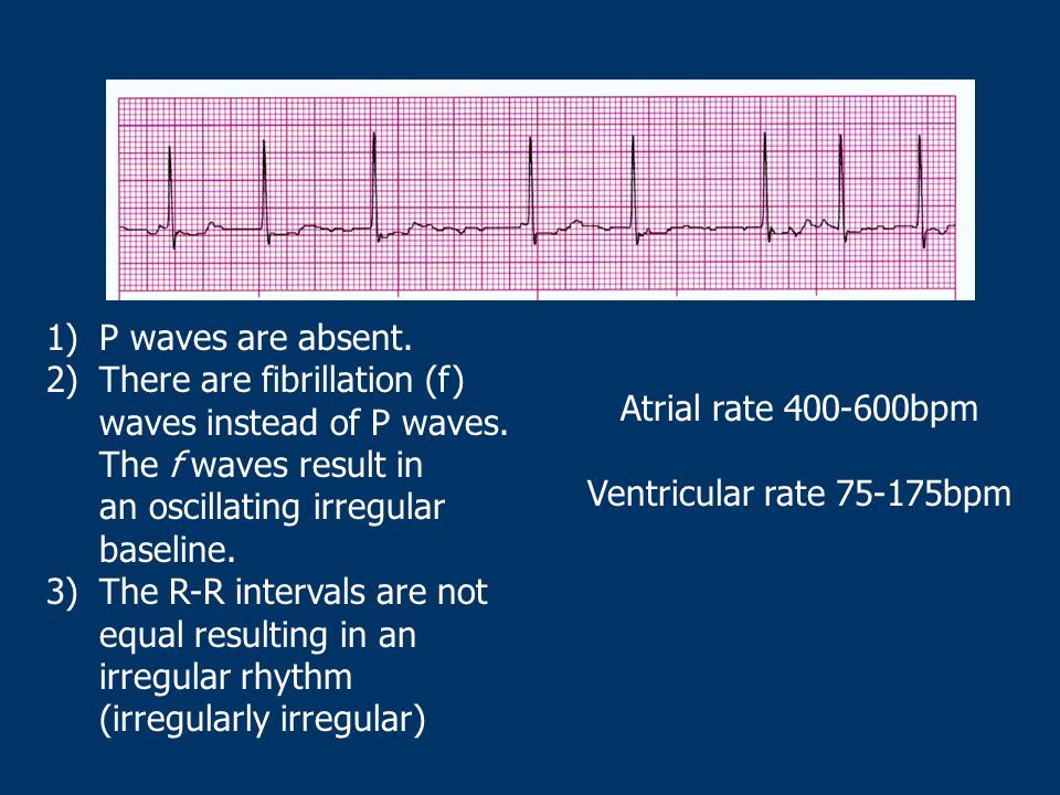 P waves are absent. There are fibrillation (f) waves instead of P waves. The f waves result in an oscillating irregular baseline.