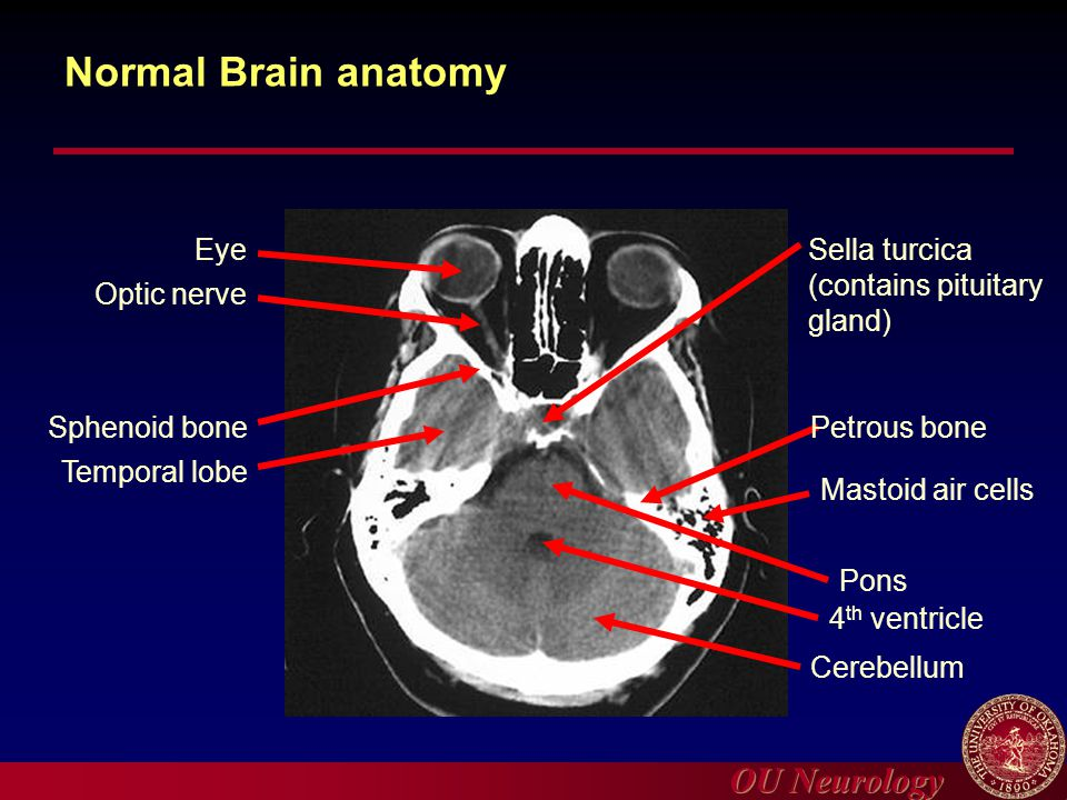 Ct anatomy of temporal bone