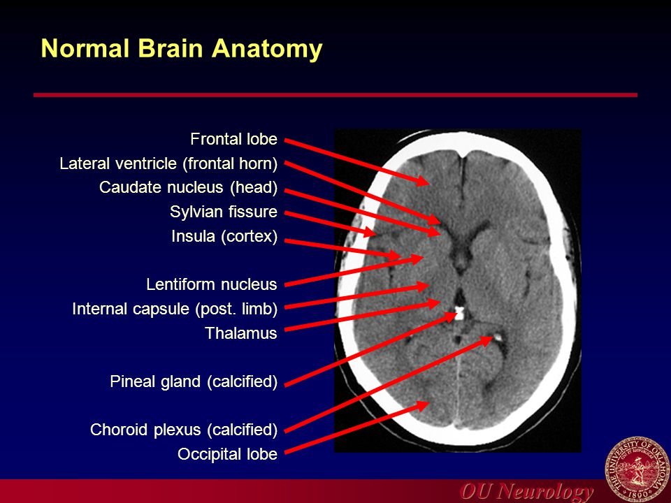Normal ct brain anatomy