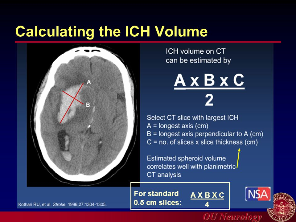 Calculating the ICH Volume