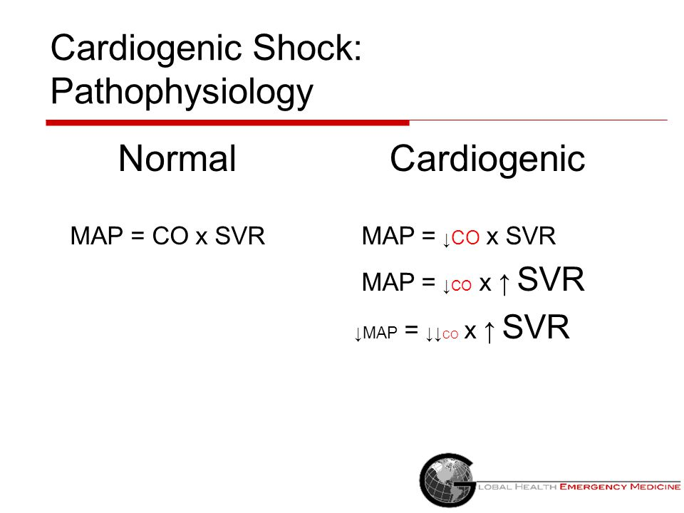 Cardiogenic Shock: Pathophysiology