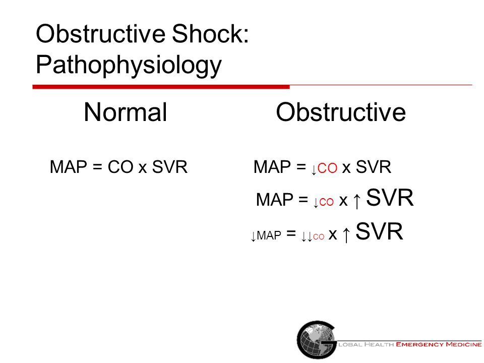Obstructive Shock: Pathophysiology