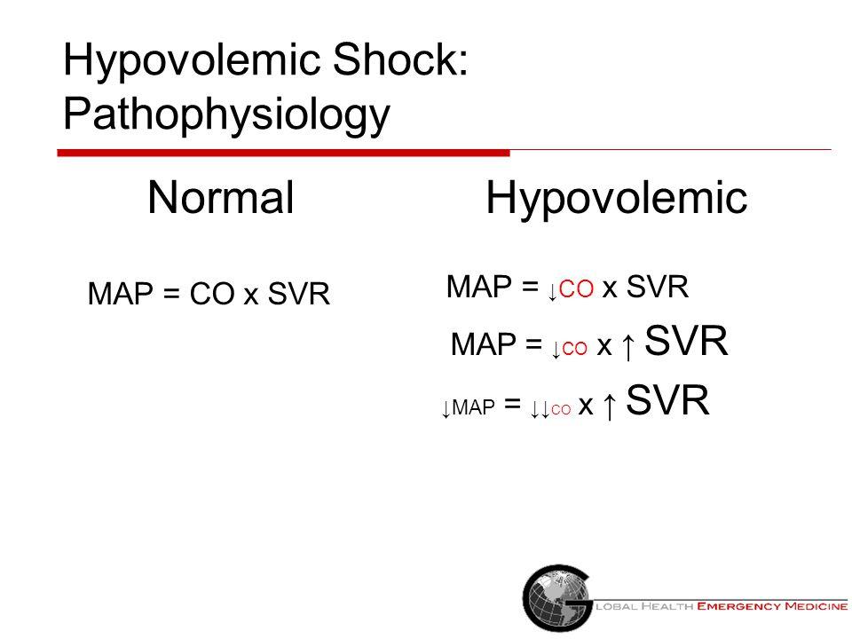 Hypovolemic Shock: Pathophysiology