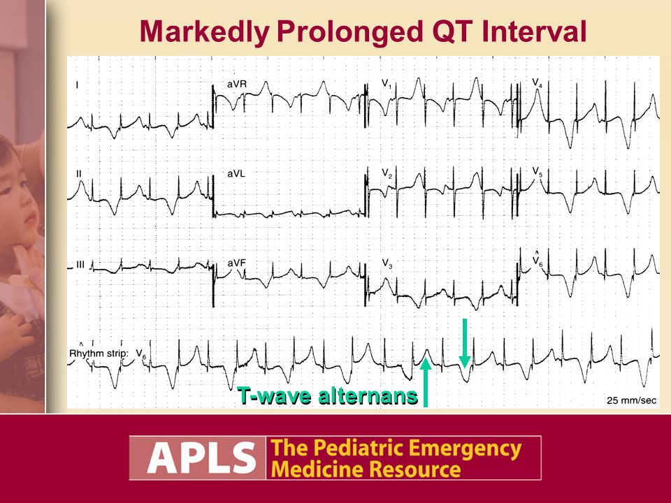 Markedly Prolonged QT Interval
