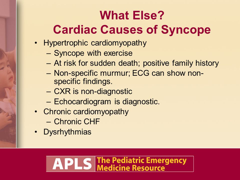 What Else Cardiac Causes of Syncope