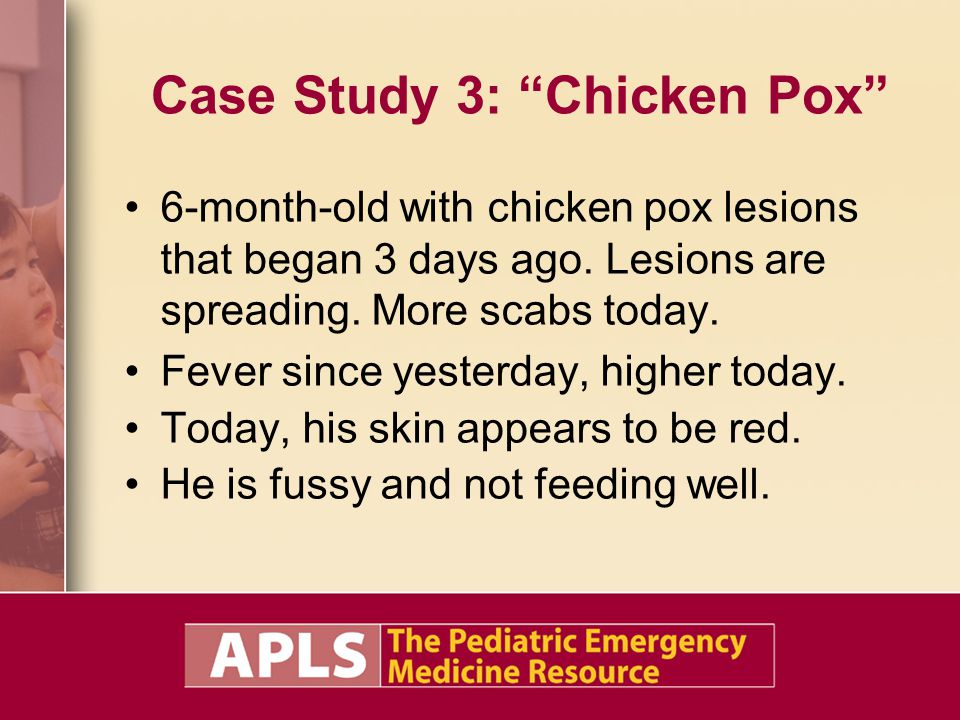 Case Study 3: Chicken Pox