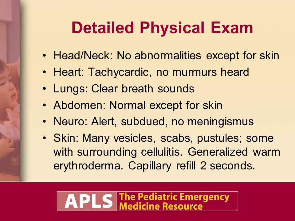 Detailed Physical Exam