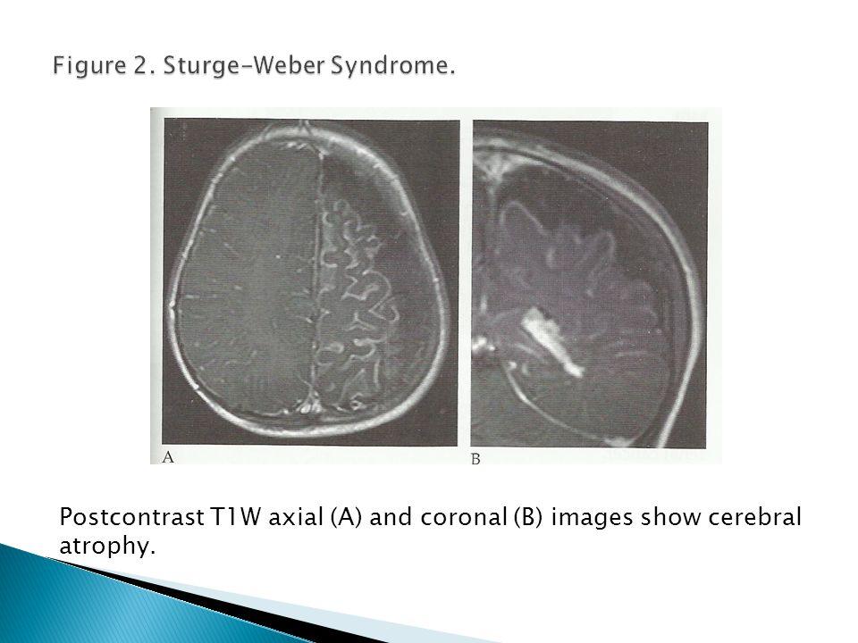 Figure 2. Sturge-Weber Syndrome.
