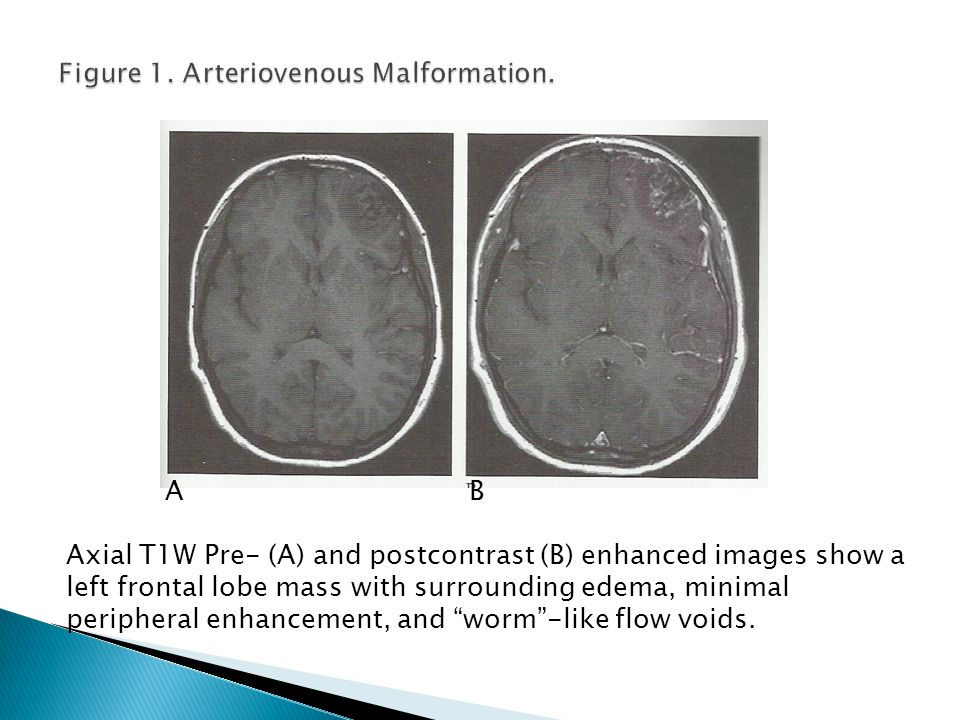 Figure 1. Arteriovenous Malformation.