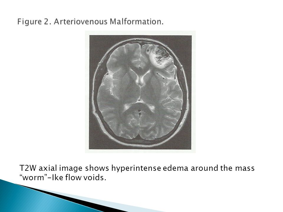 Figure 2. Arteriovenous Malformation.