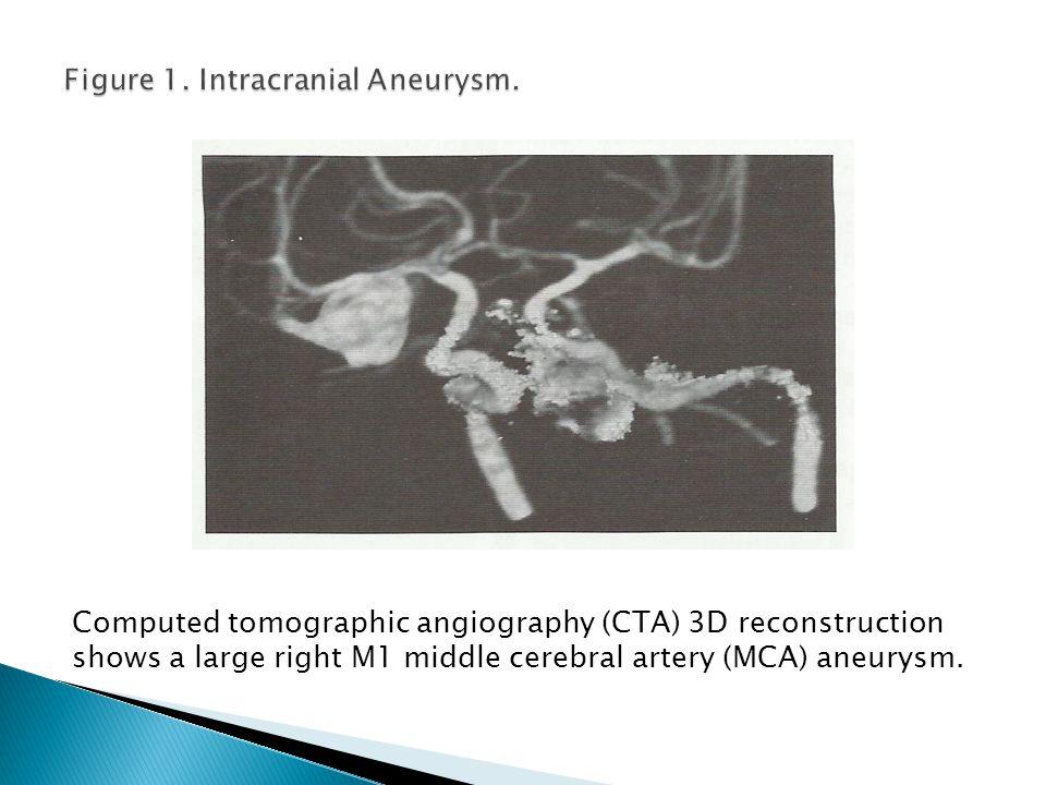 Figure 1. Intracranial Aneurysm.