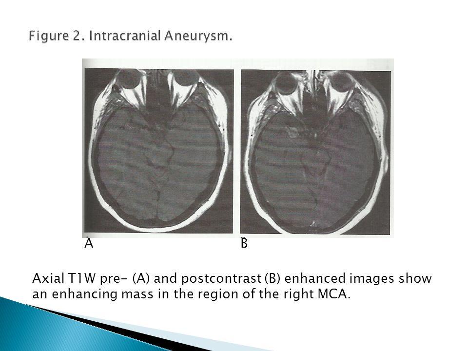 Figure 2. Intracranial Aneurysm.