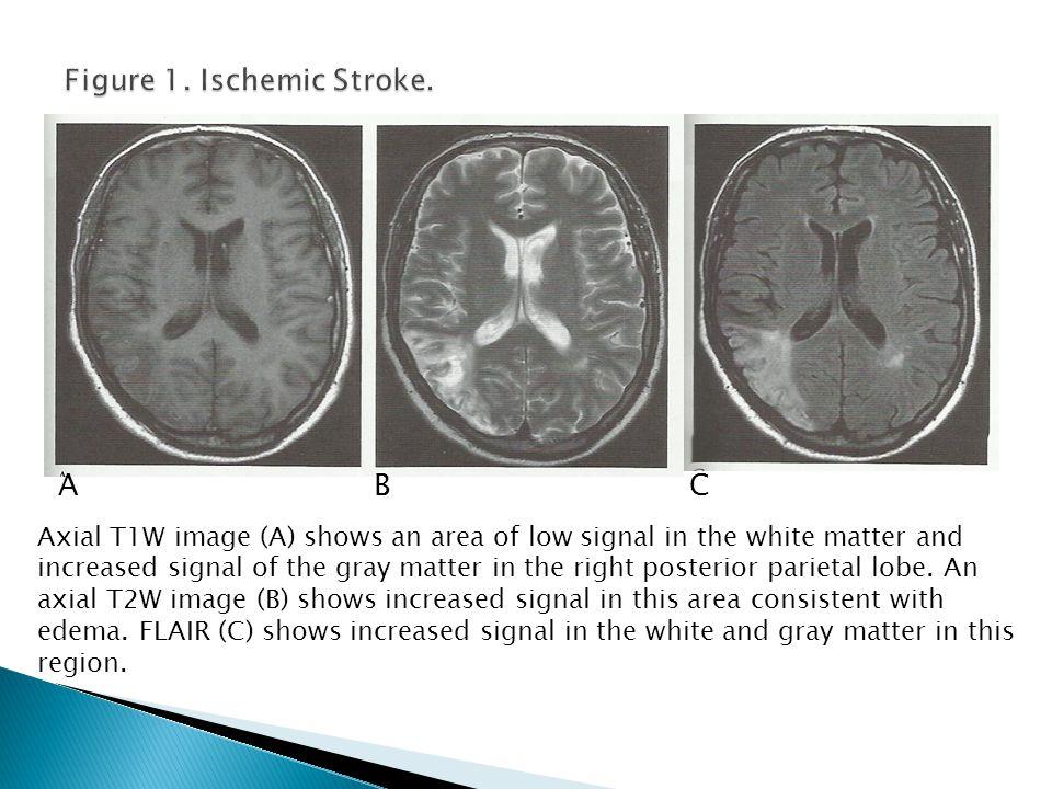 Figure 1. Ischemic Stroke.