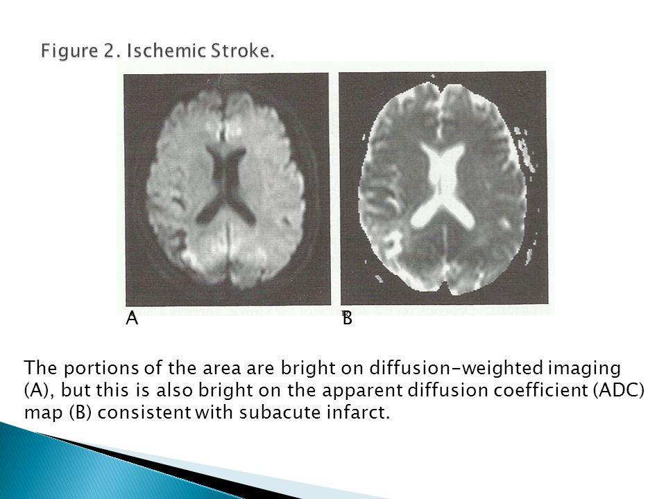 Figure 2. Ischemic Stroke.