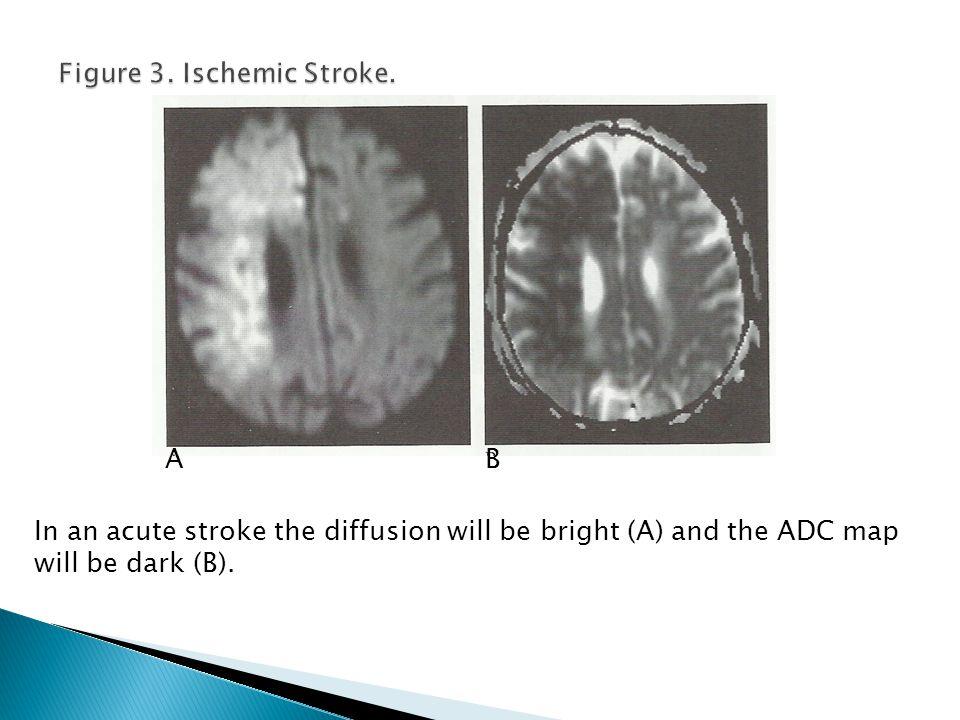 Figure 3. Ischemic Stroke.