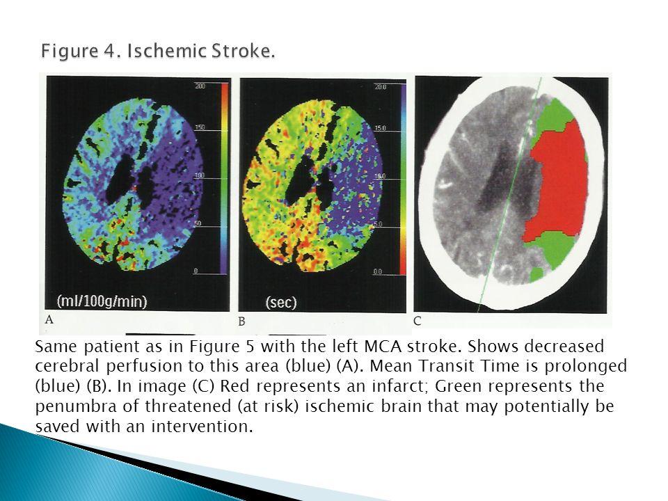 Figure 4. Ischemic Stroke.