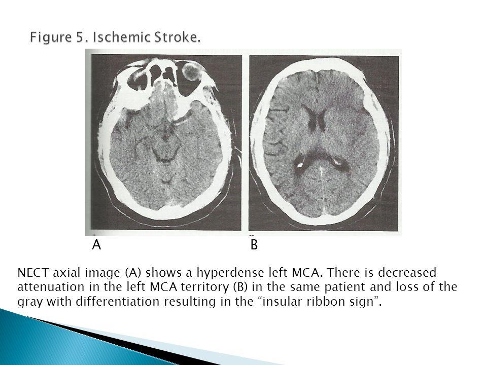 Figure 5. Ischemic Stroke.