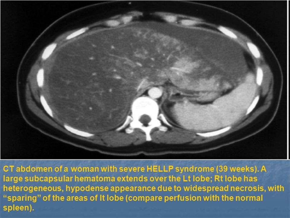 CT abdomen of a woman with severe HELLP syndrome (39 weeks)