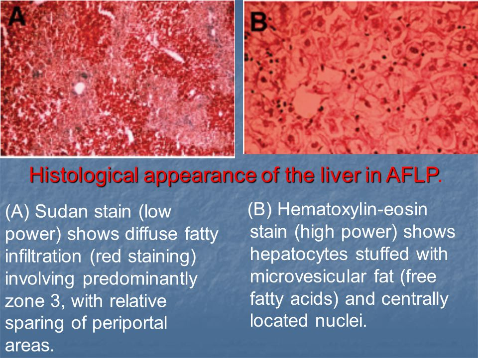 Histological appearance of the liver in AFLP.
