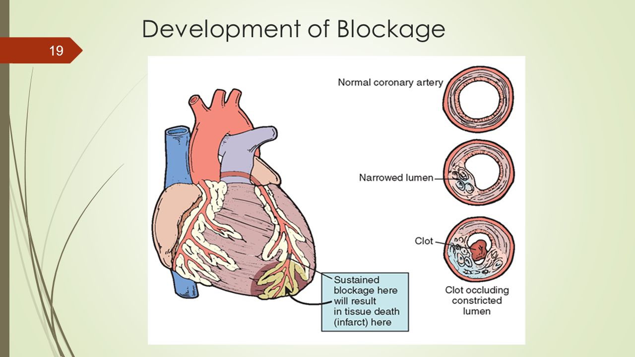 Development of Blockage