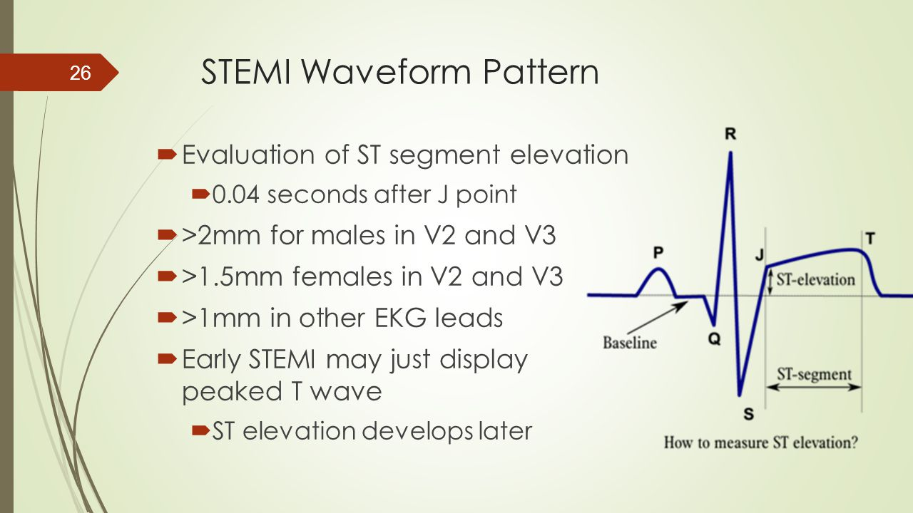 STEMI Waveform Pattern