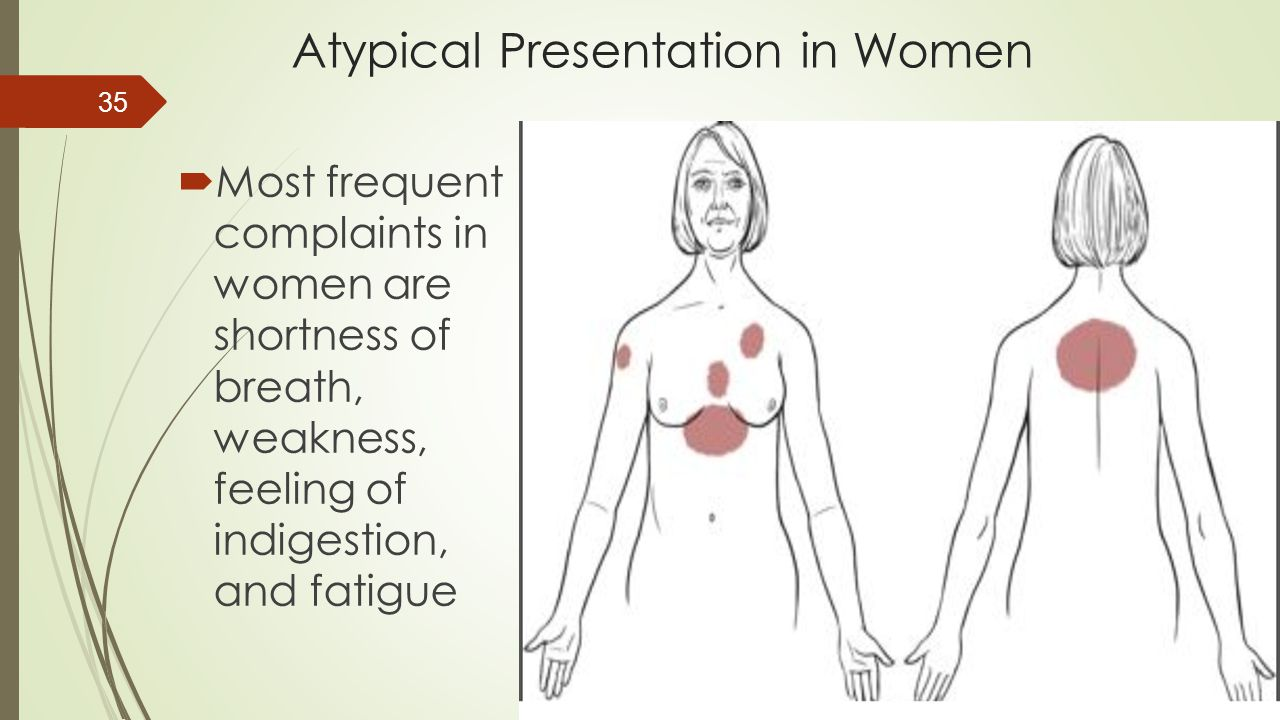 Atypical Presentation in Women