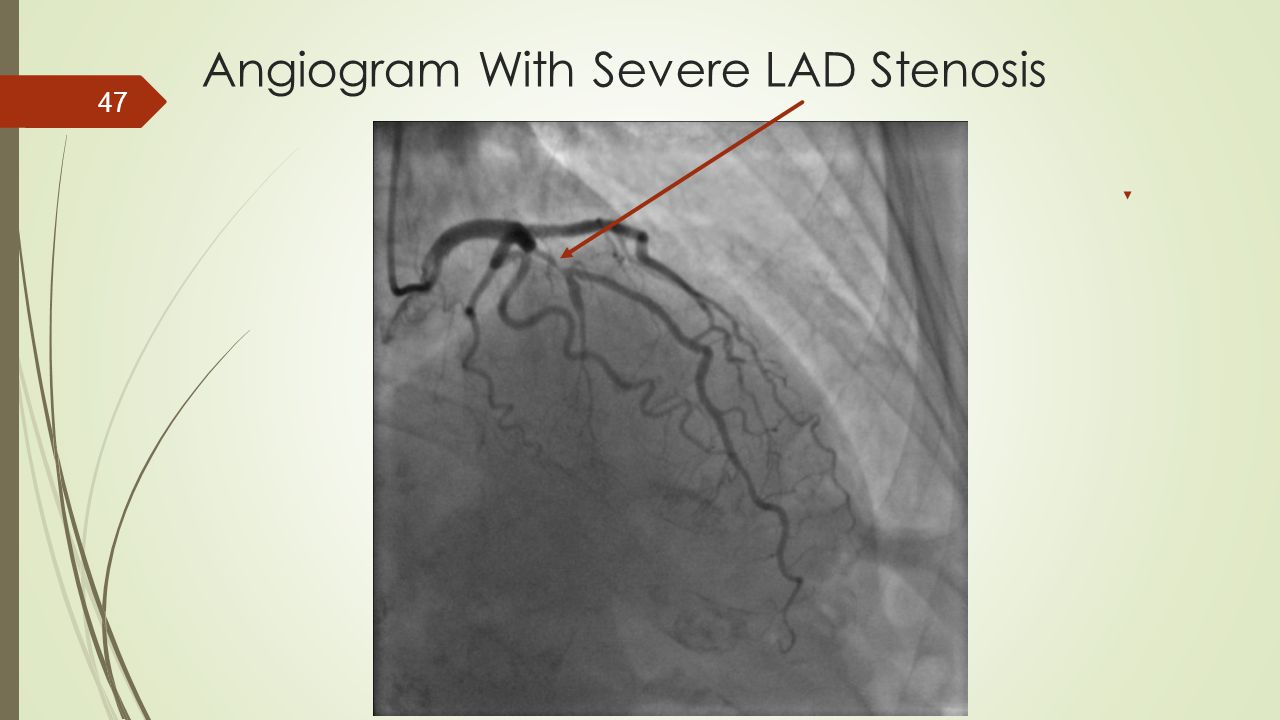 Angiogram With Severe LAD Stenosis