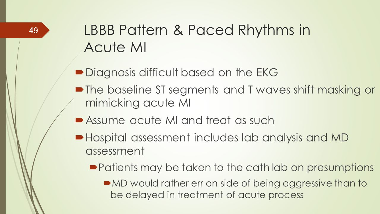 LBBB Pattern & Paced Rhythms in Acute MI