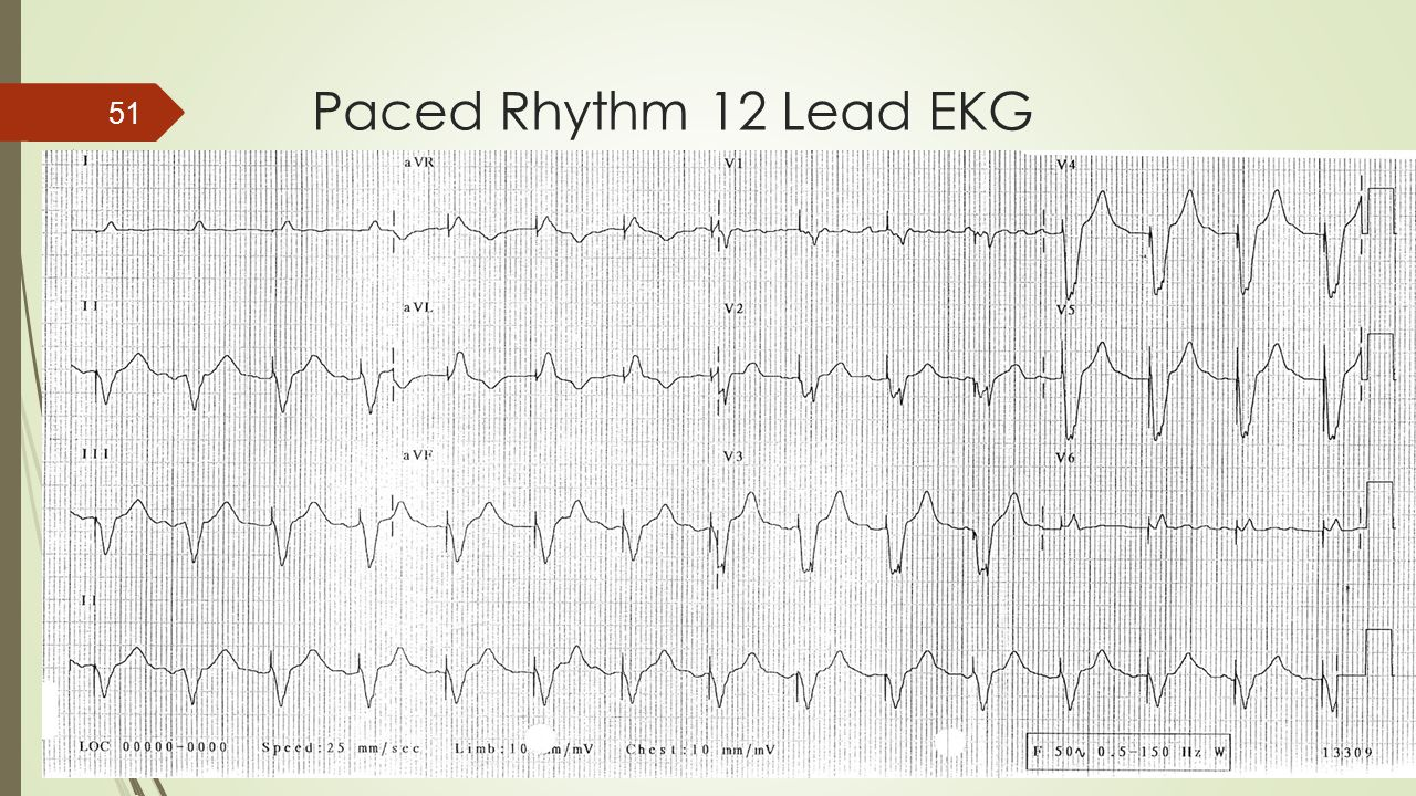 Paced Rhythm 12 Lead EKG