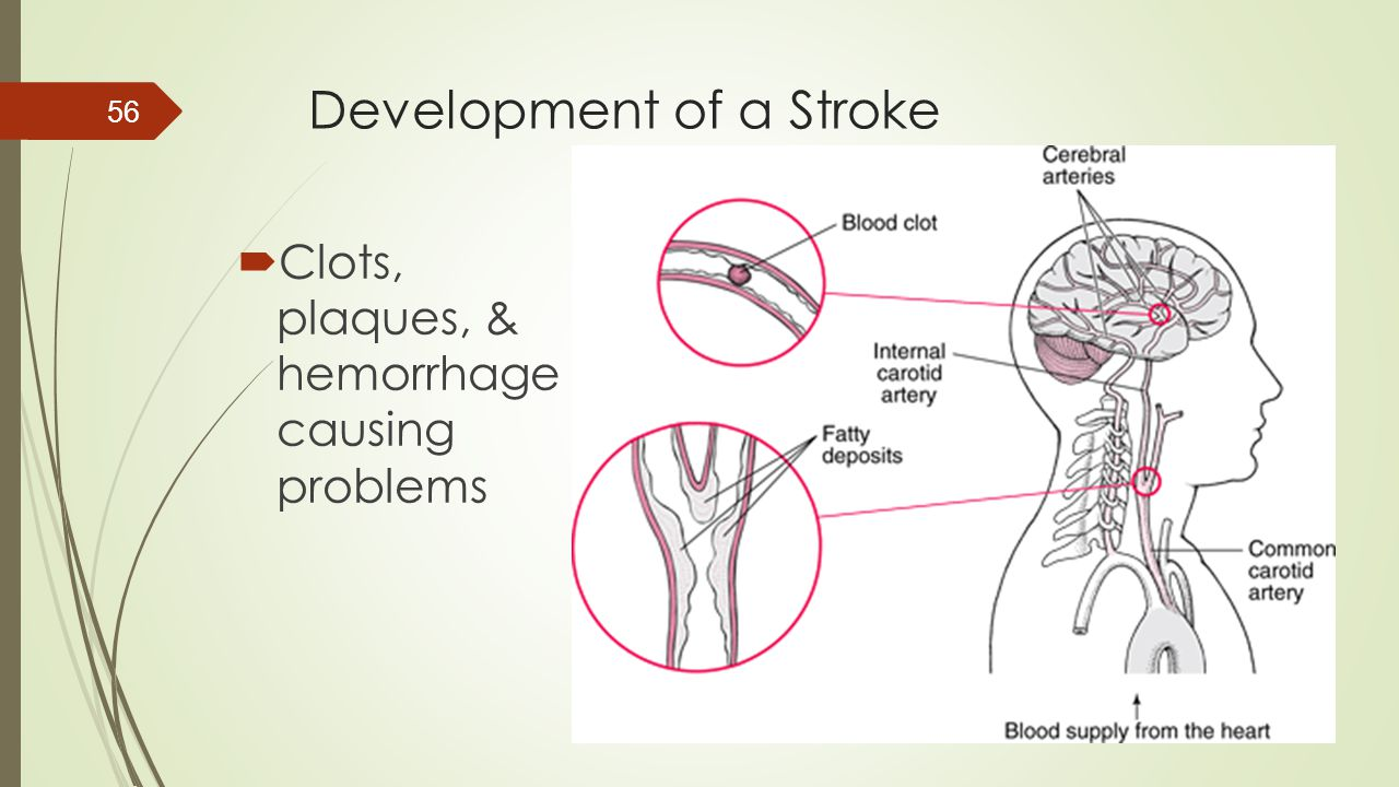 Development of a Stroke
