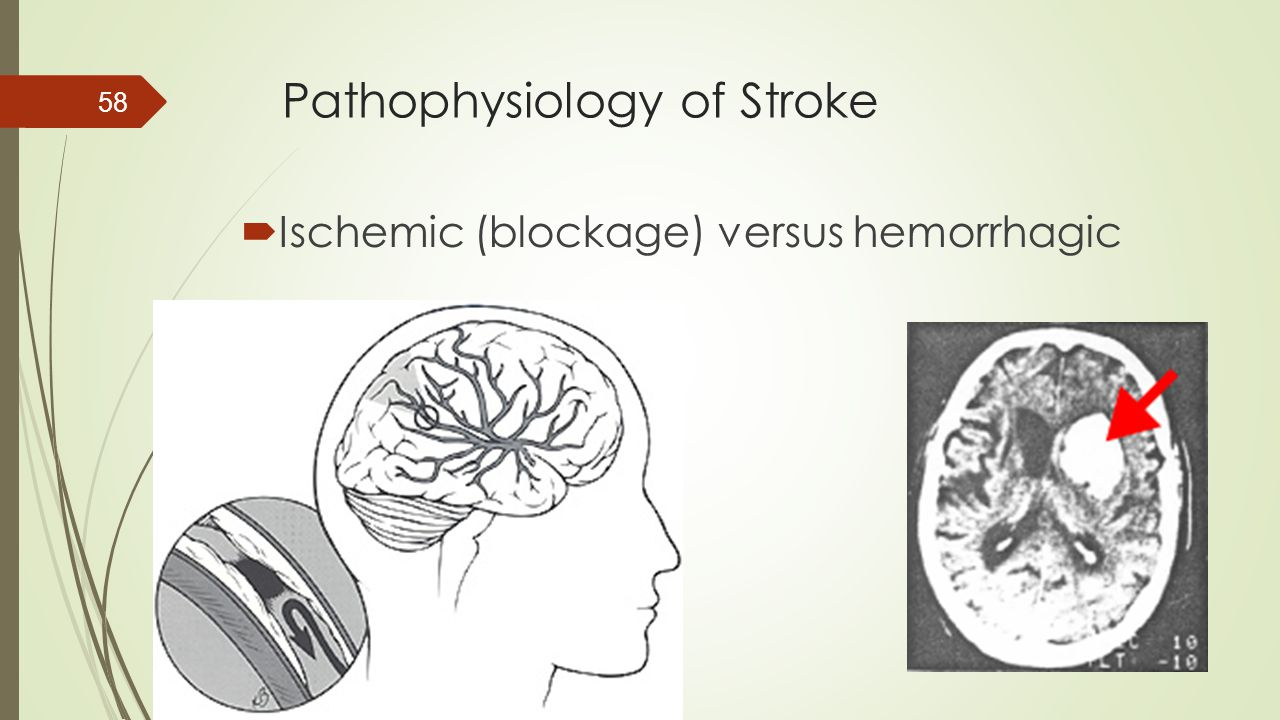 Pathophysiology of Stroke