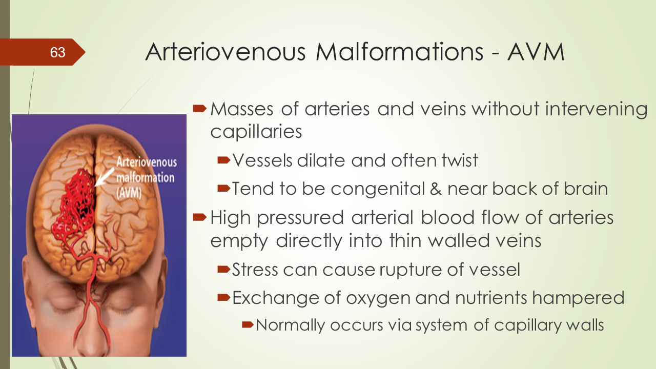 Arteriovenous Malformations - AVM