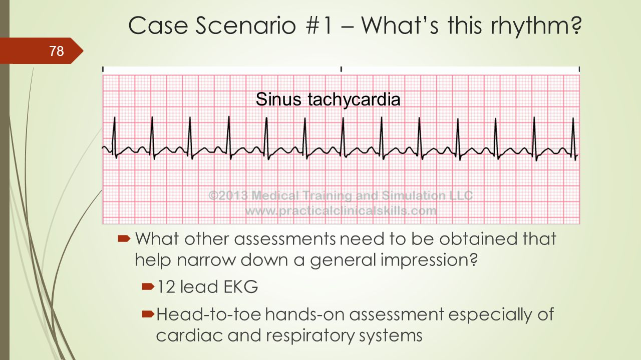Case Scenario #1 – What's this rhythm